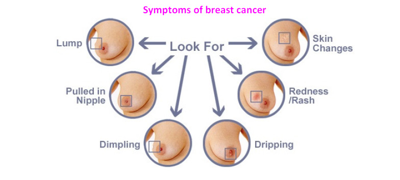 How can you treat breast cancer