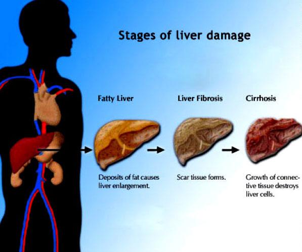 Non – alcoholic Fatty Liver Disease (NAFLD) | Mines Green ...